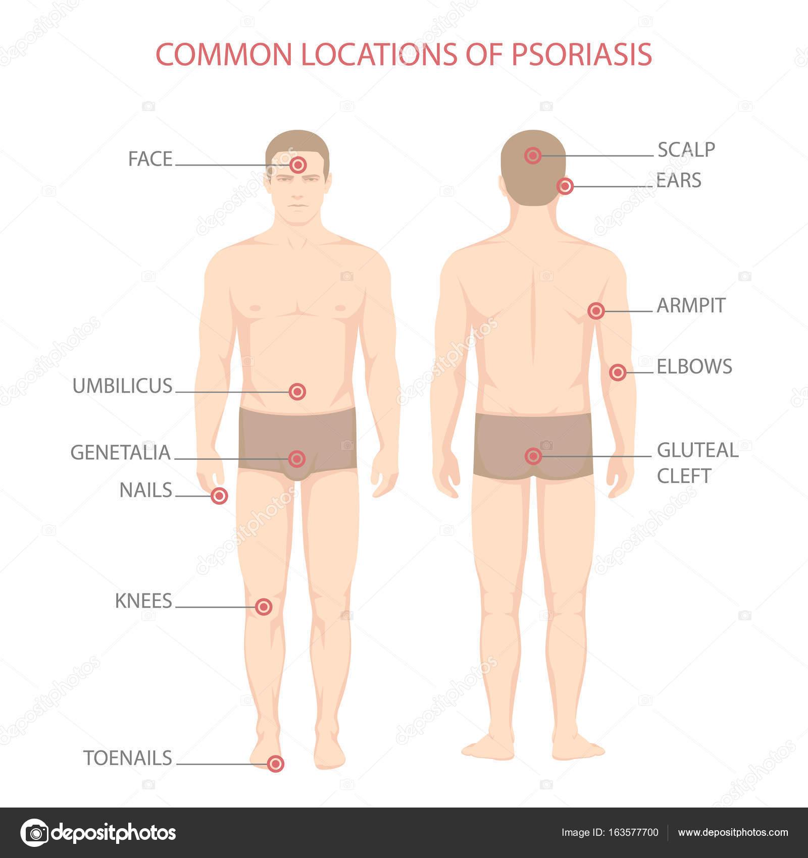 diagrama de la enfermedad de psoriasis — Vector de stock © eveleen ...