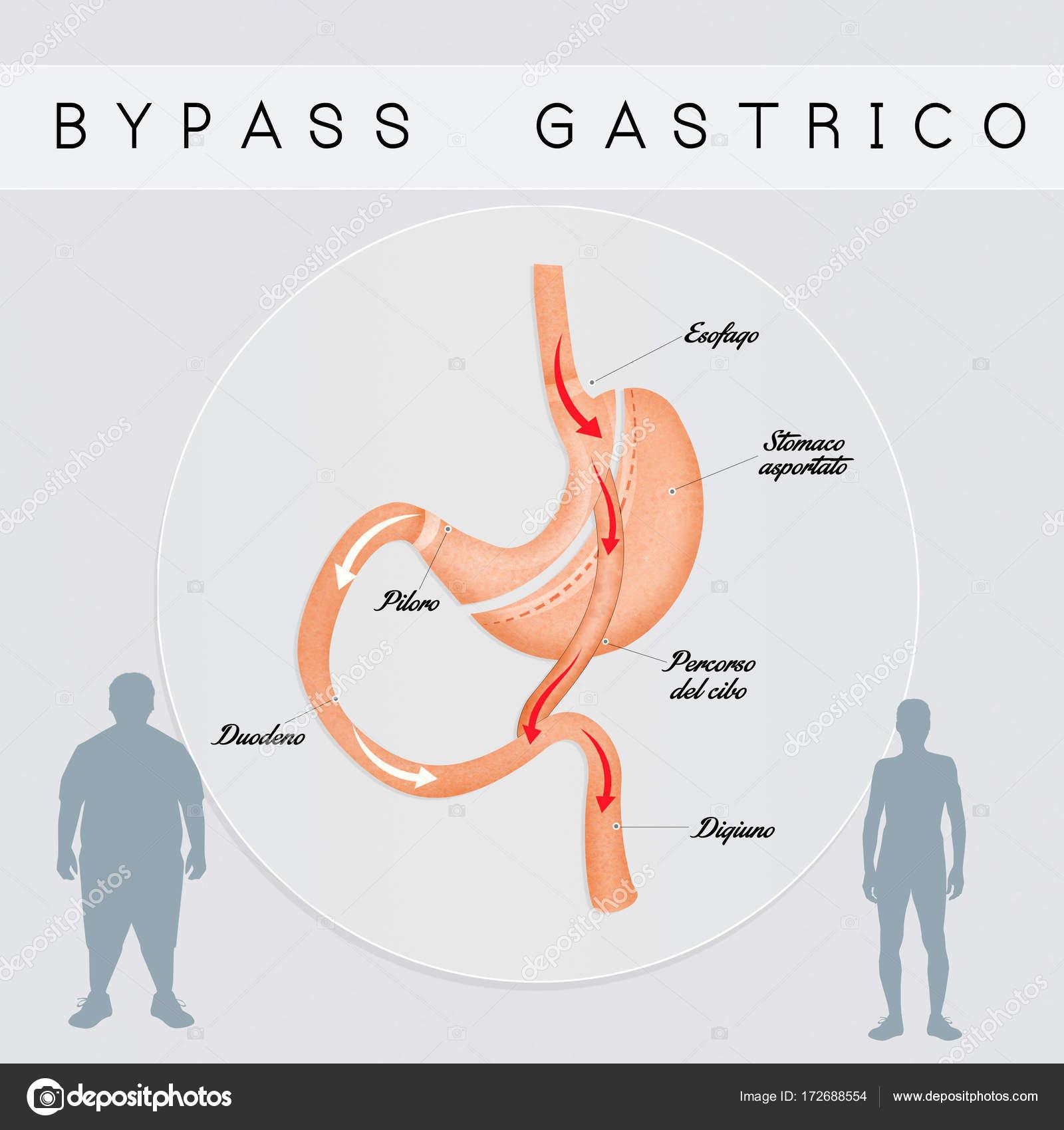 bypass operation magen