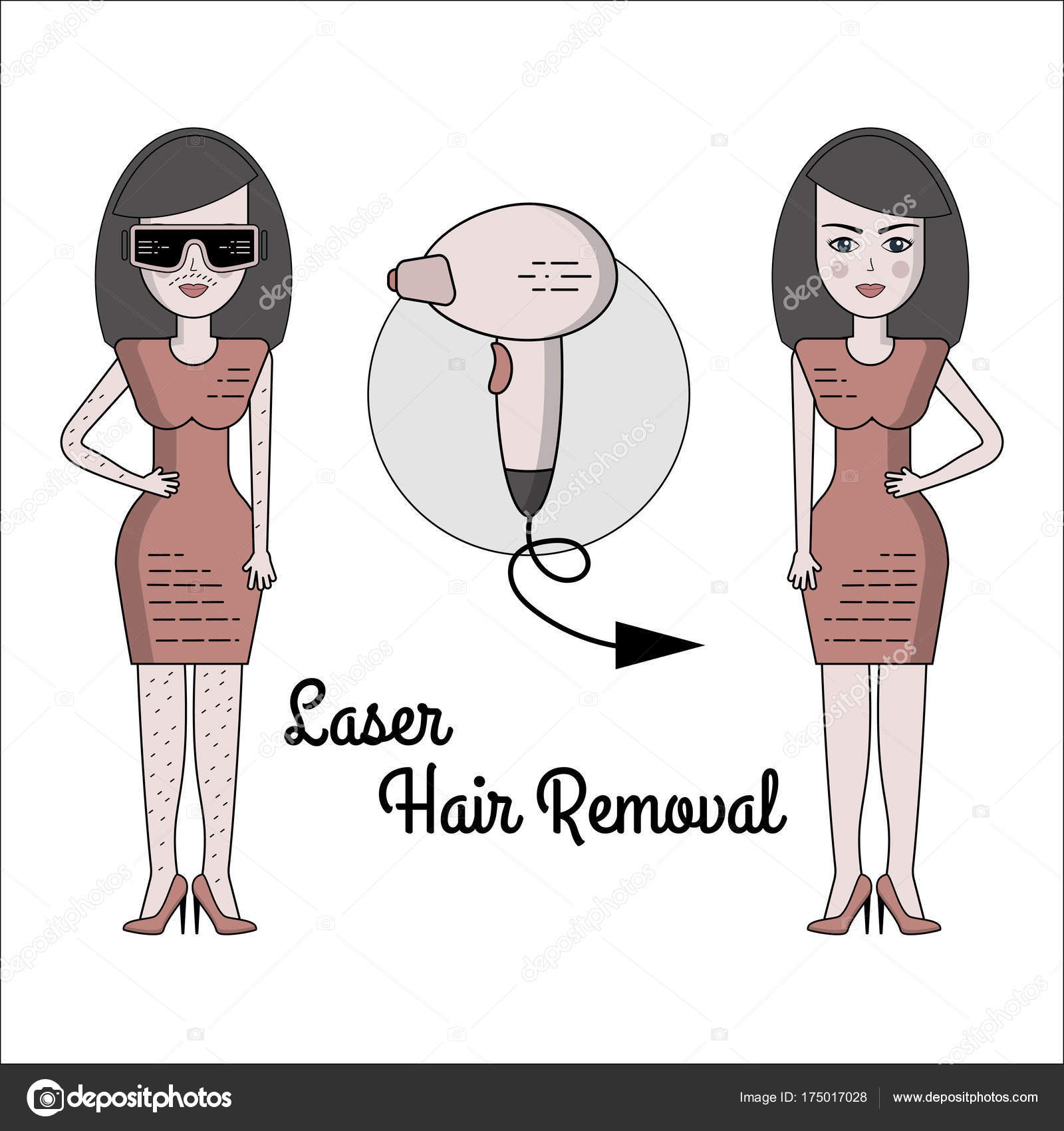 Vector Flat Illustration Of The Process Of Laser Hair Removal