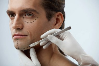 Handsome Man With Lines On Face Before Plastic Surgery