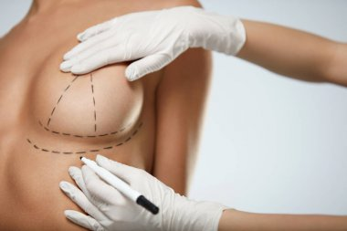 Hands Drawing Lines On Beautiful Woman Breast. Plastic Surgery