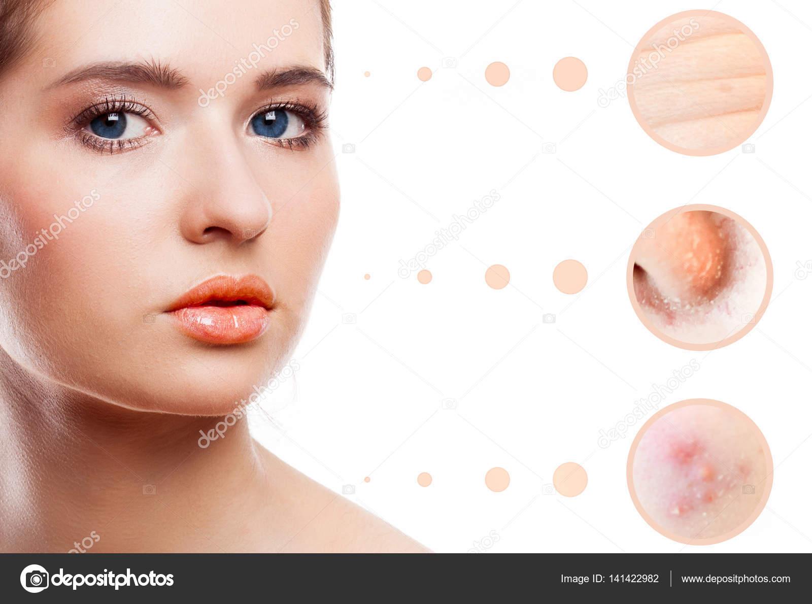 probleme de peau visage
