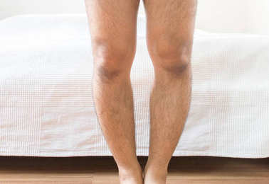 Asian man leg bandy-legged shape of the legs,Close up