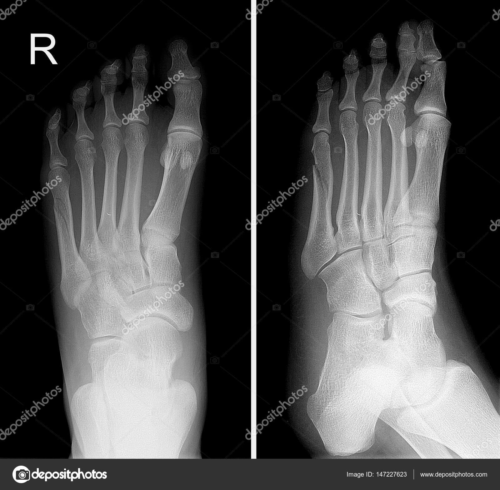 Radiografía del pie derecho mostrar el dedo quinto fractura — Fotos ...