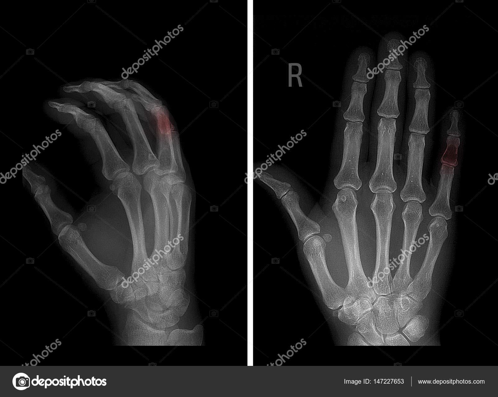 Radiografía del cartílago de la falange media del 5to dedo de la ...
