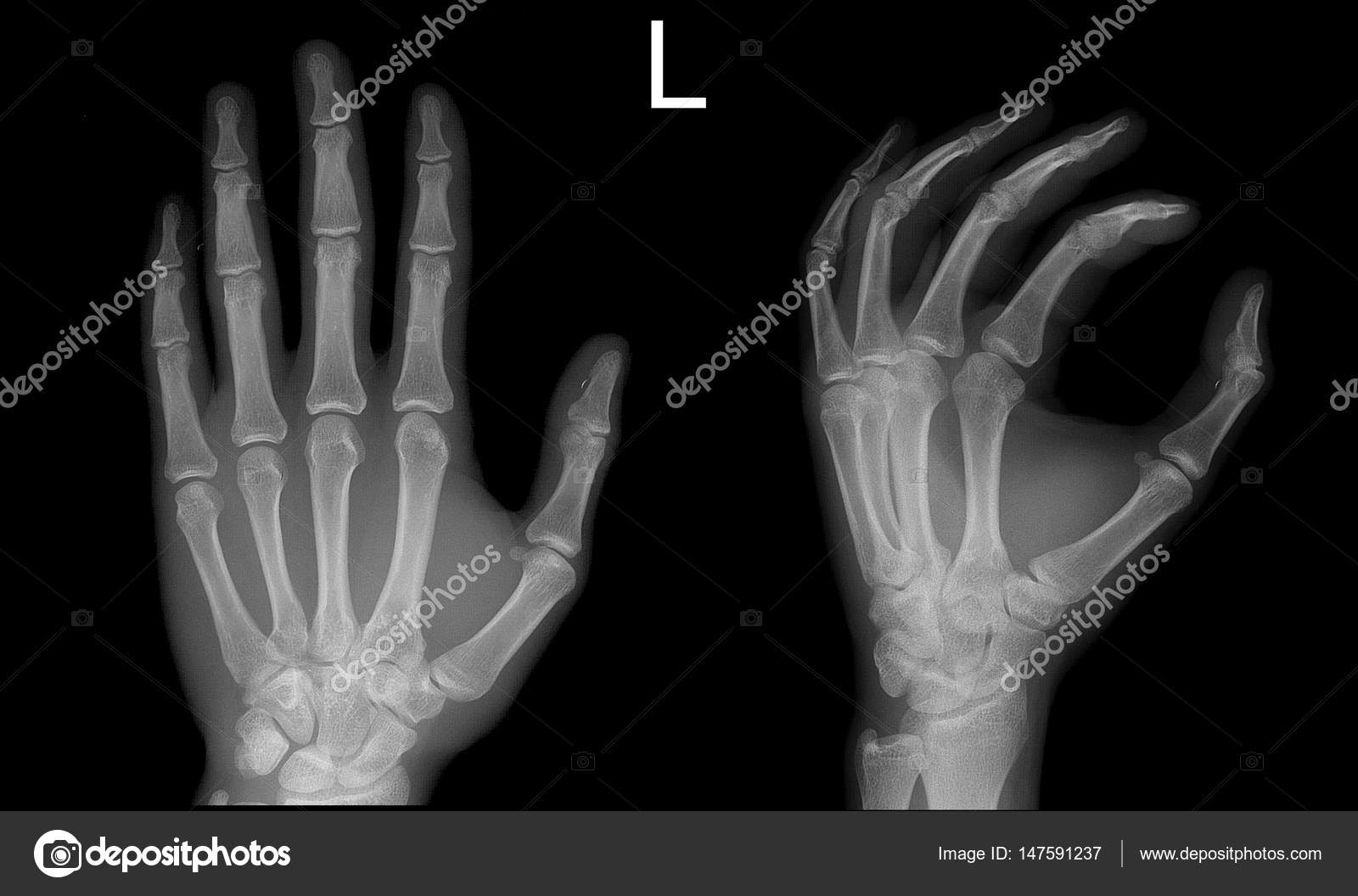 X-ray Hand Frontal Schrägansicht normal — Stockfoto © vanzittoo ...