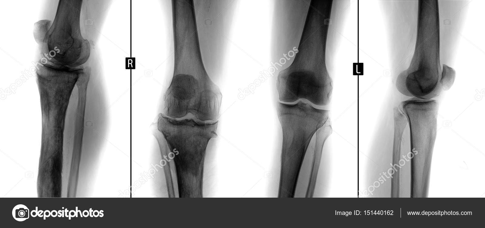 X Ray Of Knee Joints Osteomyelitis Of The Right Tibial Negative