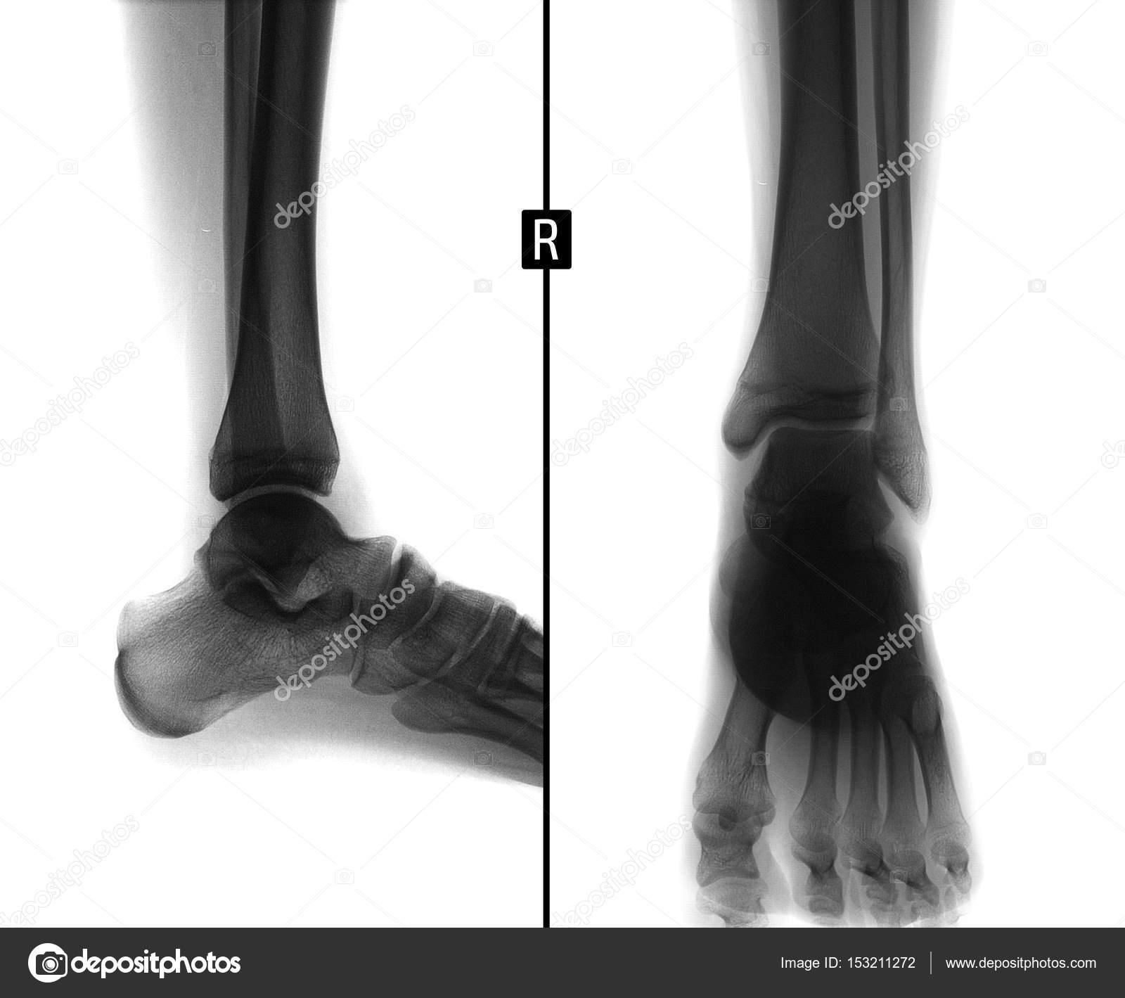 Radiografía de la articulación del tobillo. Muestra el quiste óseo ...
