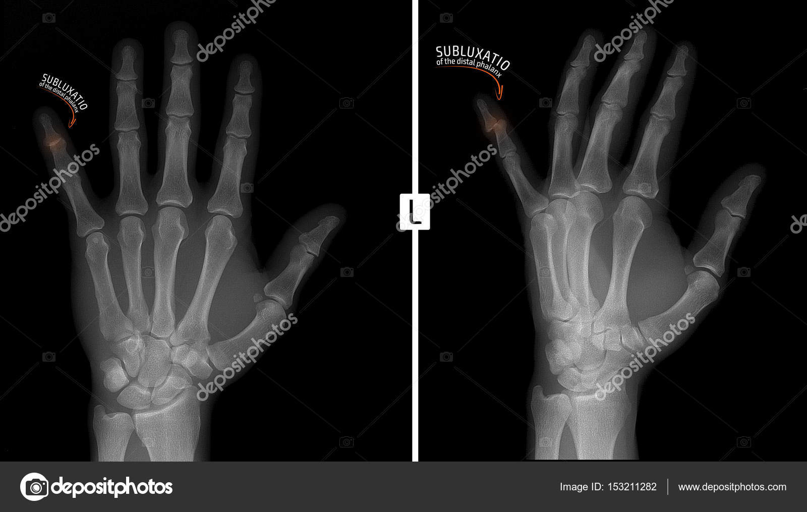 Radiografía de la mano. Muestra la subluxación de la falange distal ...
