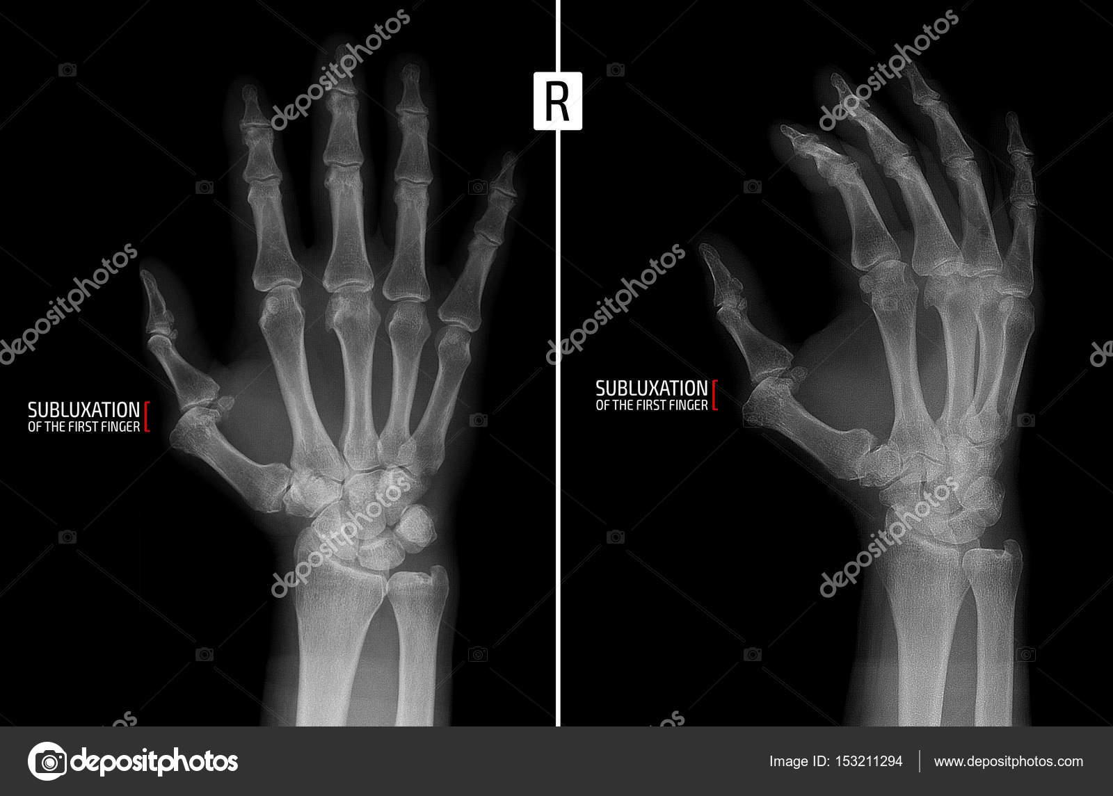 Esqueleto Mano Derecha Radiografía De La Mano Muestra La