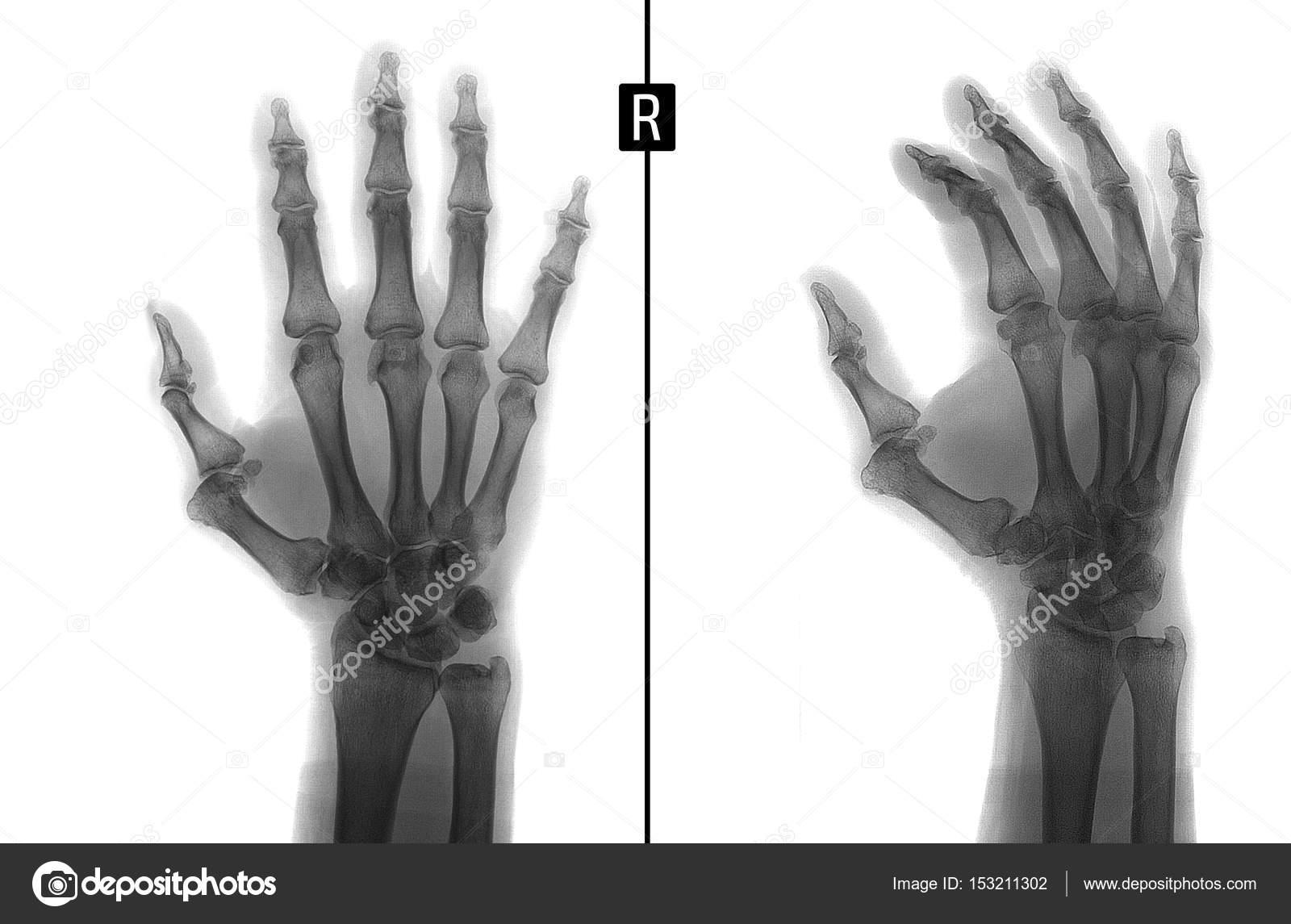 Fotos Los Huesos De La Mano Derecha Radiografía De La Mano