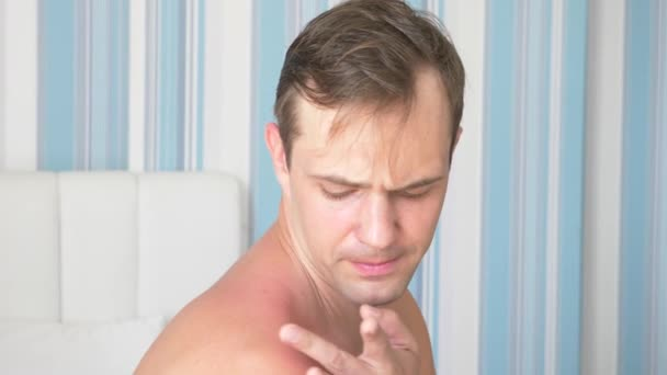 4k. a man smears his shoulders, received a sunburn, gel from burns. A man with reddened itchy skin after sunburn, smears cream on the skin. Slow motion