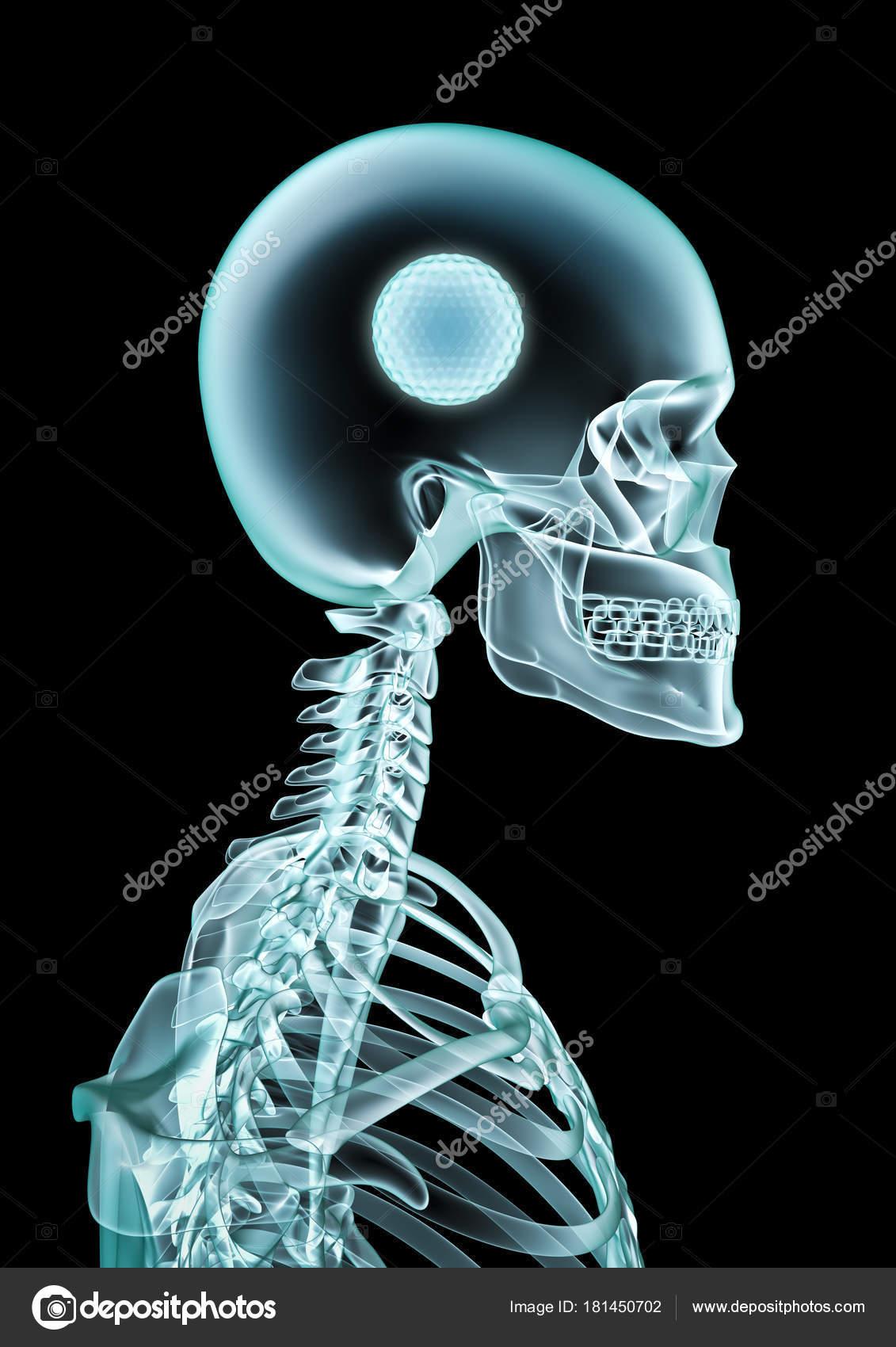 Röntgen Golf Fan Illustration Skelett Röntgen Zeigt Golfball Kopf ...