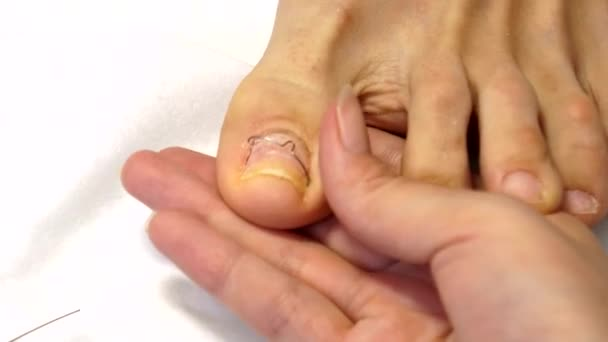 Treatment of ingrown toenails. Ingrown nail. The doctor is a podiatrist.  Hardware pedicure. Podiatry.