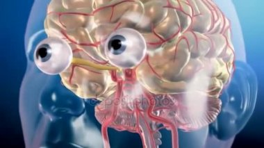 Aneurysm in the Brain and Clipping - 3D medical animation