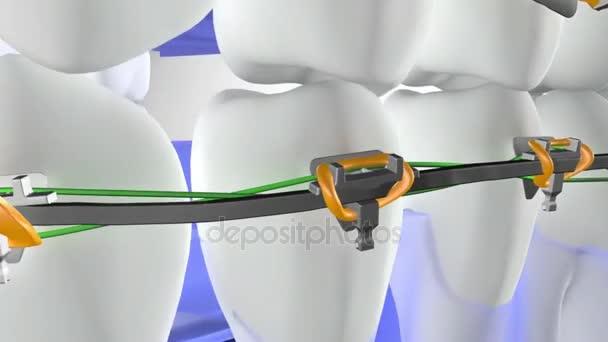 Zubní chirurgie animace zubů