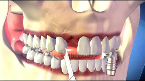 Schöne Zahnimplantate Installationsvorgang. Close Up 3d Animation