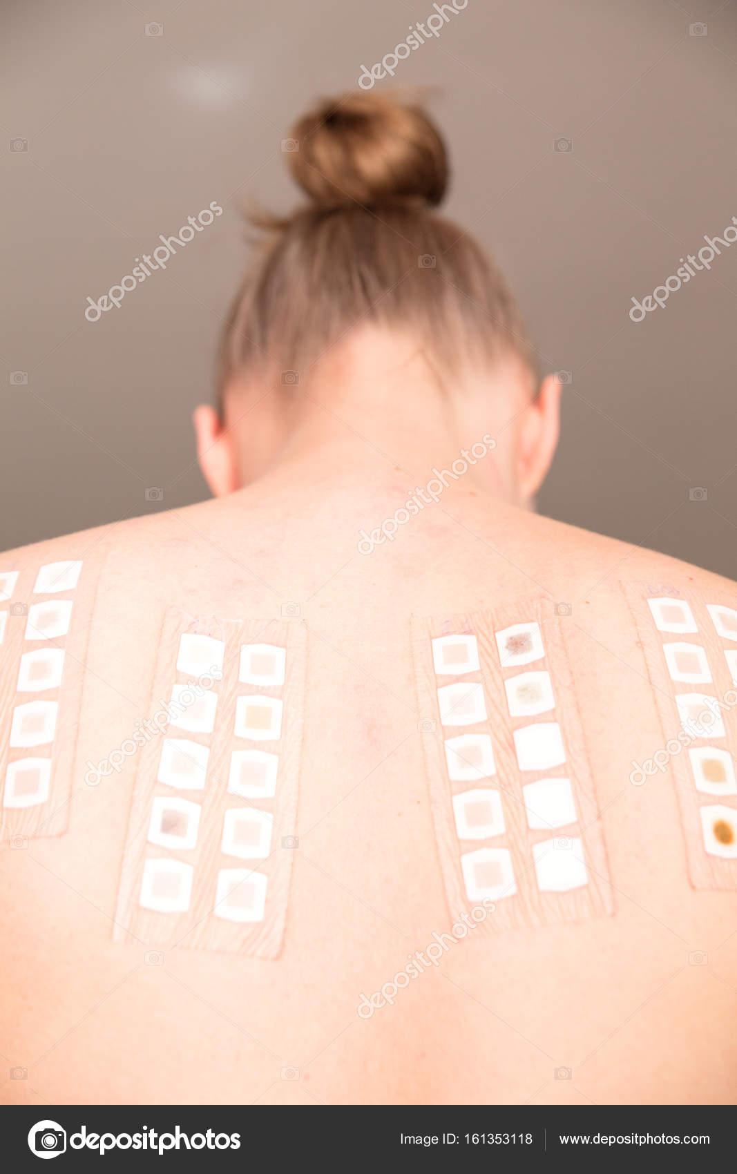 skin patch test on back