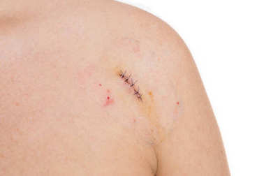 Birthmark or mold removal concept with stitches or strings