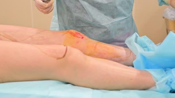 Kosmetická chirurgická liposukce. Proces odstraňování tuku na nohách tlusté ženy. Bez tváře, nepoznatelný pacient.