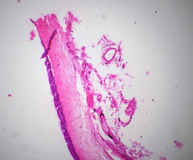 Ciliatde epithelium section under the microscope