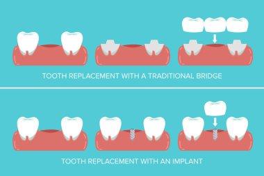 Dental implants versus fixed bridges stock vector