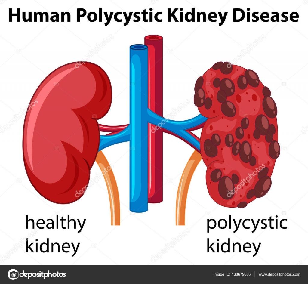 Diagrama que muestra la enfermedad del riñón poliquístico humano ...