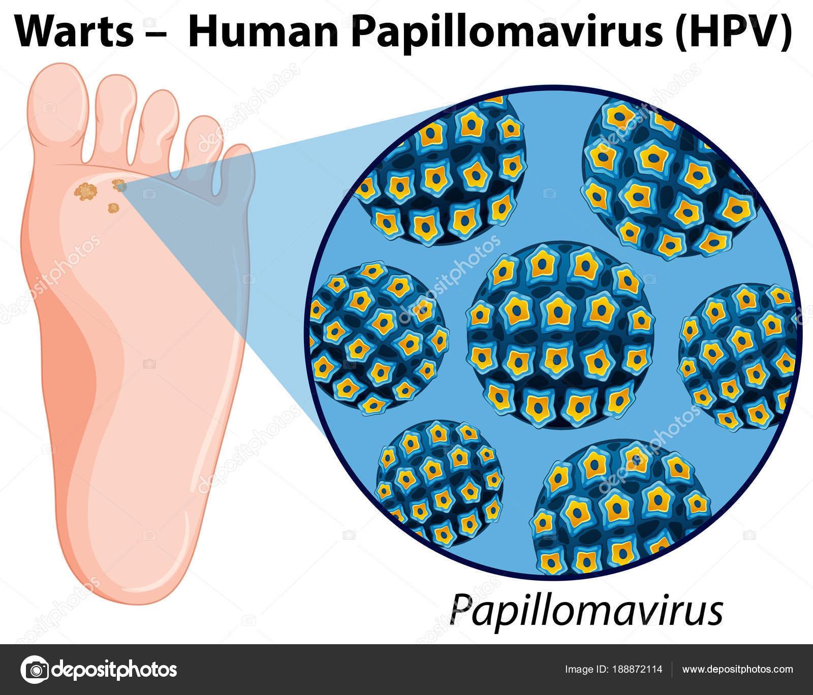 Diagrama que muestra el virus del papiloma humano — Archivo Imágenes ...