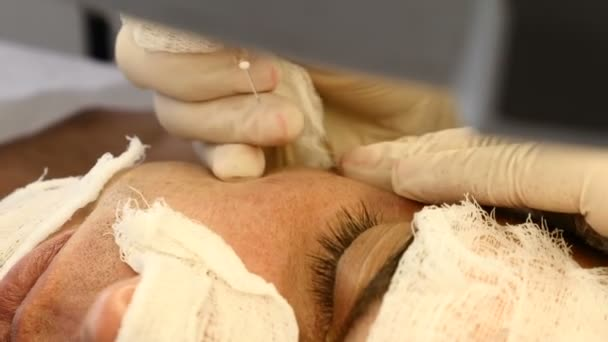 Man in beauty clinic. Male client gets facial cosmetology procedure in beauty salon. Medical face skin cleaning. Close up