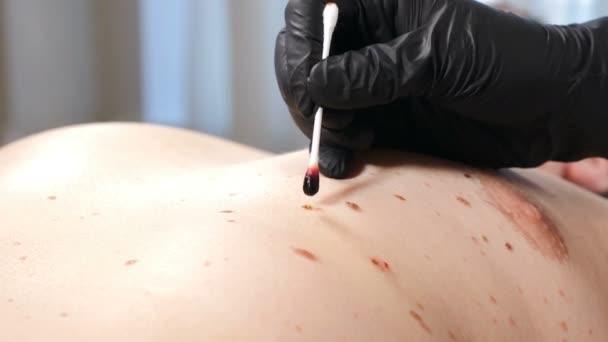 Männliche Klientin in Schönheitsklinik. Chirurg in schwarzen Handschuhen ätzt Wunde nach Entfernung des Papillomavirus. Elektrokoagulation von Papillomen. Dermatologische Heilung. Arzt macht Laserentfernung von Wucherungen an