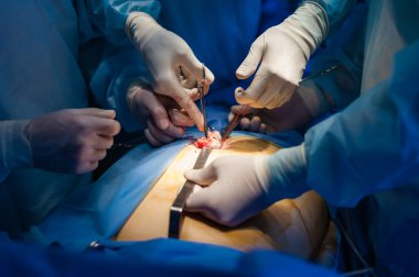 Operation using laparoscopic equipment