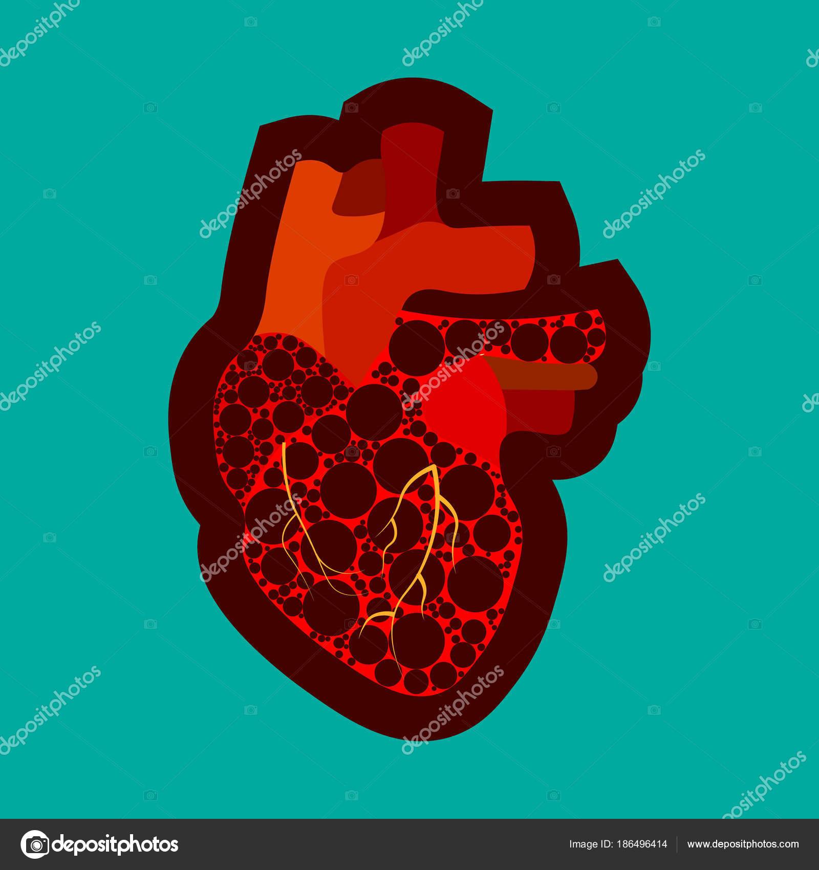 Angeborene Herzfehler Bewusstsein Plakat mit traurigen ...