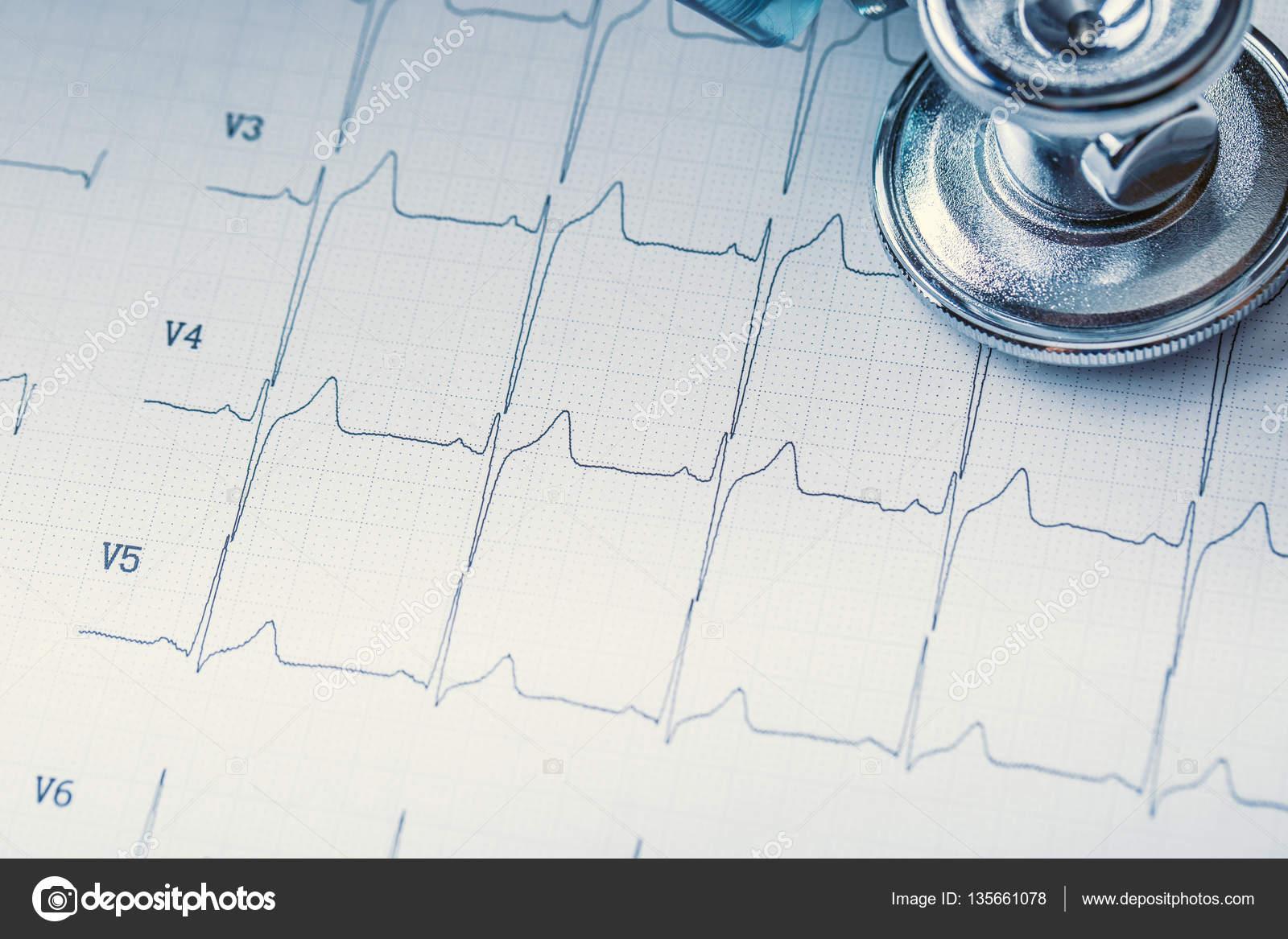 Stethoskop auf eine Herz-Monitor-Ausdruck. EKG-Diagramm und ...