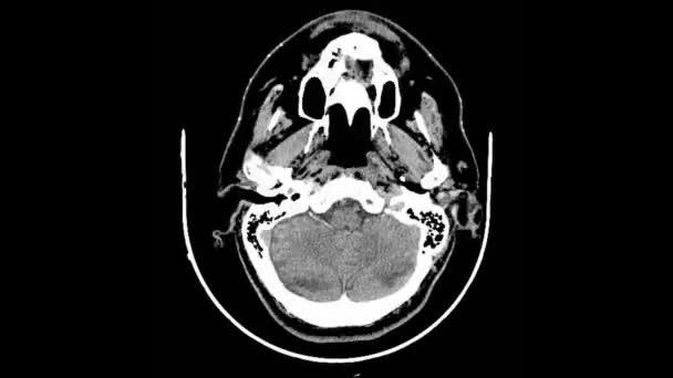 Scan Computer Tomographie Schädel — Stockvideo © yomik #185989316