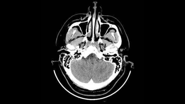 Scan Computer Tomographie Schädel — Stockvideo © yomik #185989824