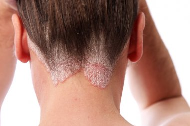 Psoriasis Of The Scalp At The Hairline