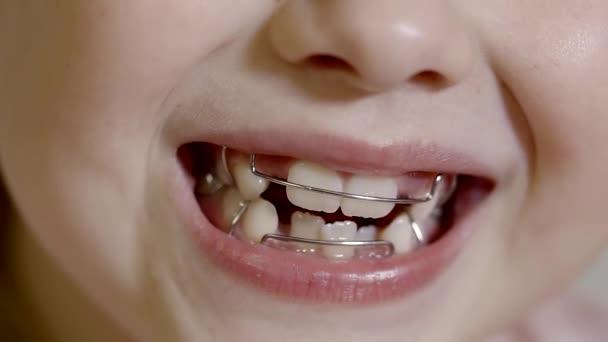 Mund des Kindes mit Zahnspangen auf den Zähnen für die Korrektur des Biss, Vorschulkind lächelt