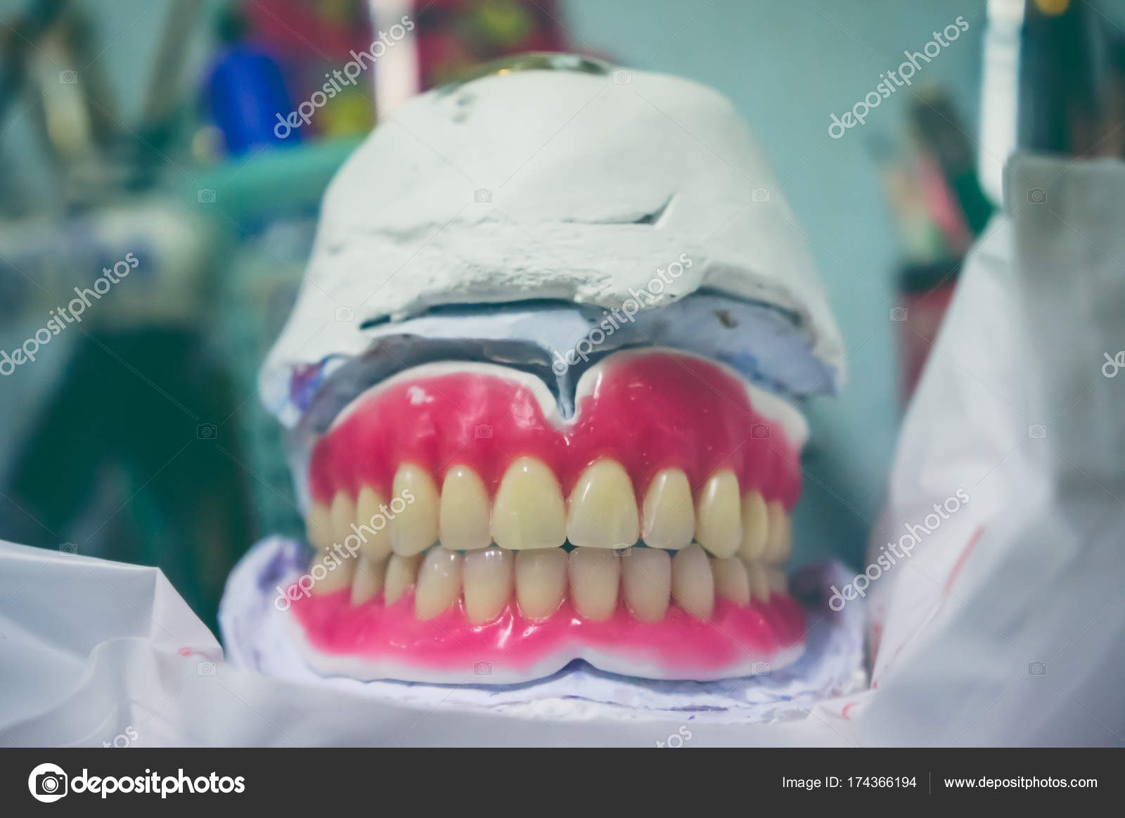 Mould Of Human Teeth Oral Health Concept Stock Photo