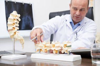 Doctor explaining various spine diseases by the example of plastic models