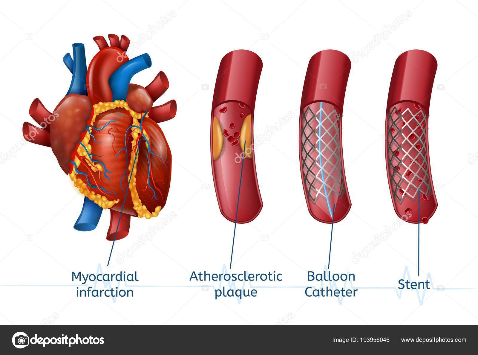 Myocardial Infarction 3d Realostic Stent In Heart Stock Vector