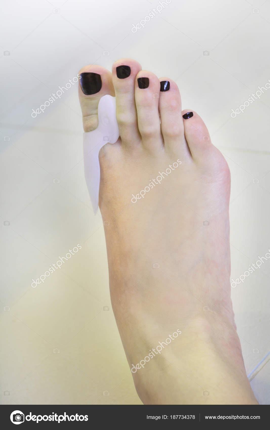 Fuß Hallux valgus orthopädische Pad am Zeh tragen — Stockfoto ...