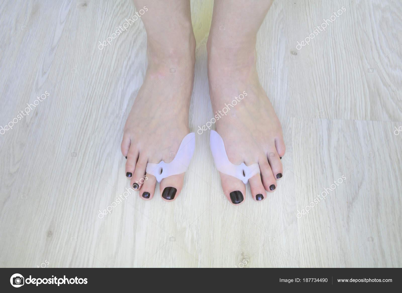 pies con almohadilla ortopédica valgus del hallux en los pies ...