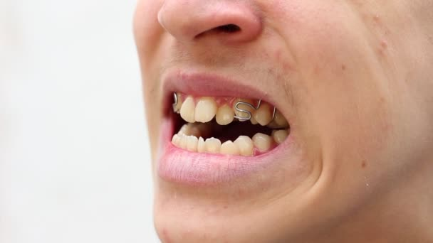 Behandlungen von Malokklusionsbeschwerden. Zahnspange. Beißkorrektur. schiefe, überfüllte und hervorstehende Zähne