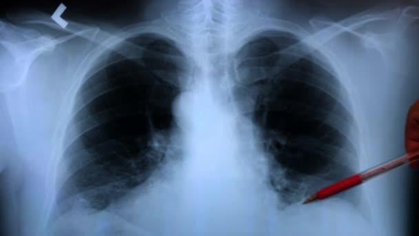 Arzt bei der Untersuchung einer Röntgenaufnahme der Lungen eines Patienten. 4k