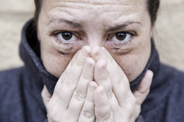 Woman with bruised eyes