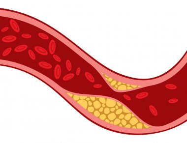 artery blocked with cholesterol