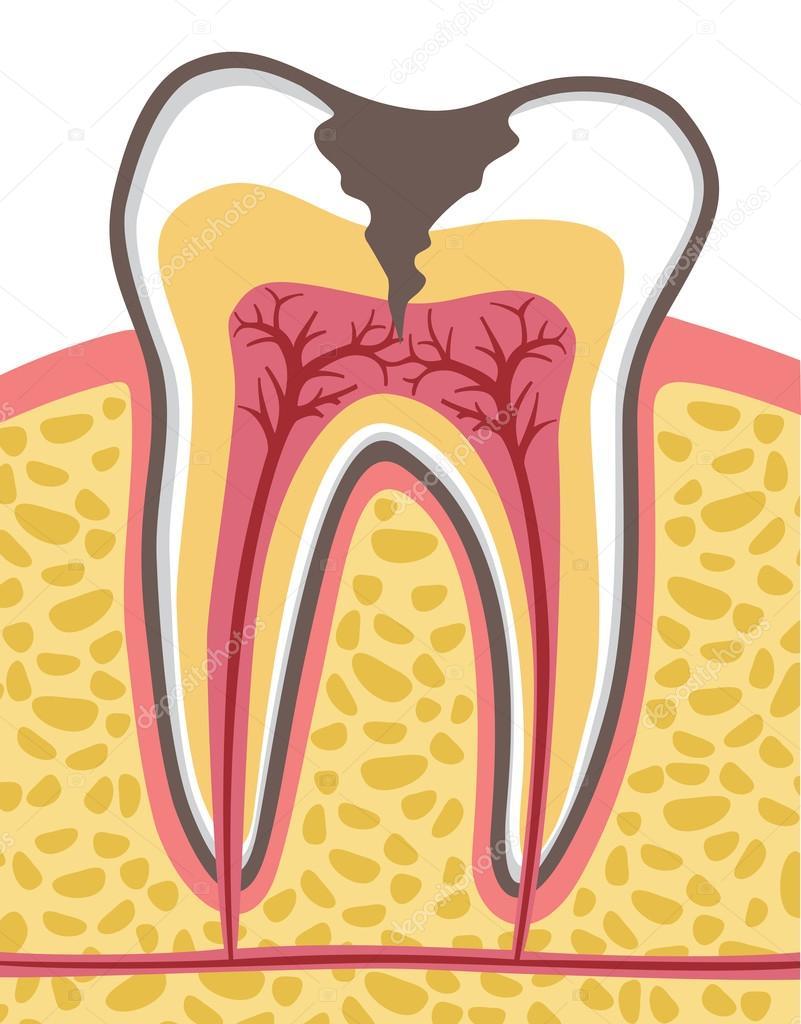 Anatomie der menschlichen Zahn — Stockvektor © Tribaliumivanka ...