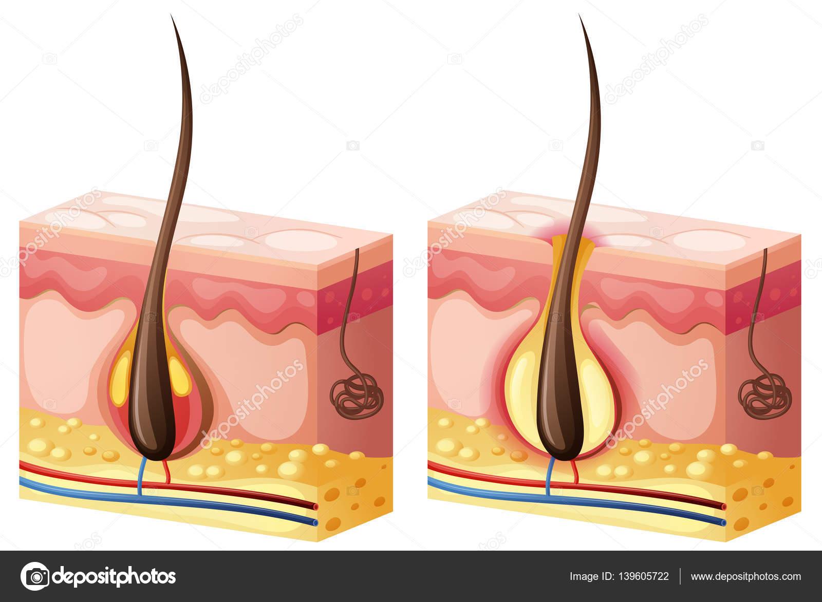 Diagrama que muestra el pelo que crece de la piel — Vector de stock ...