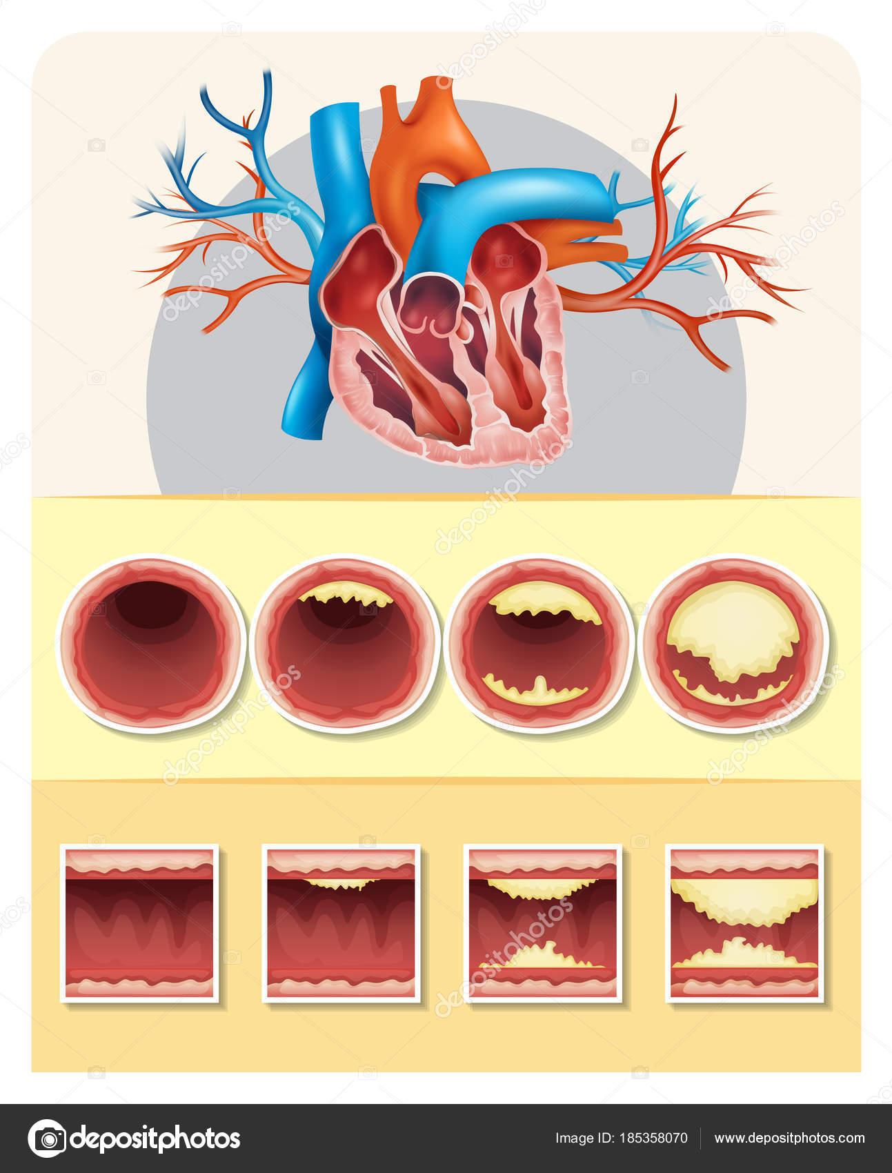 Diagrama que muestra la grasa en el corazón humano — Archivo ...