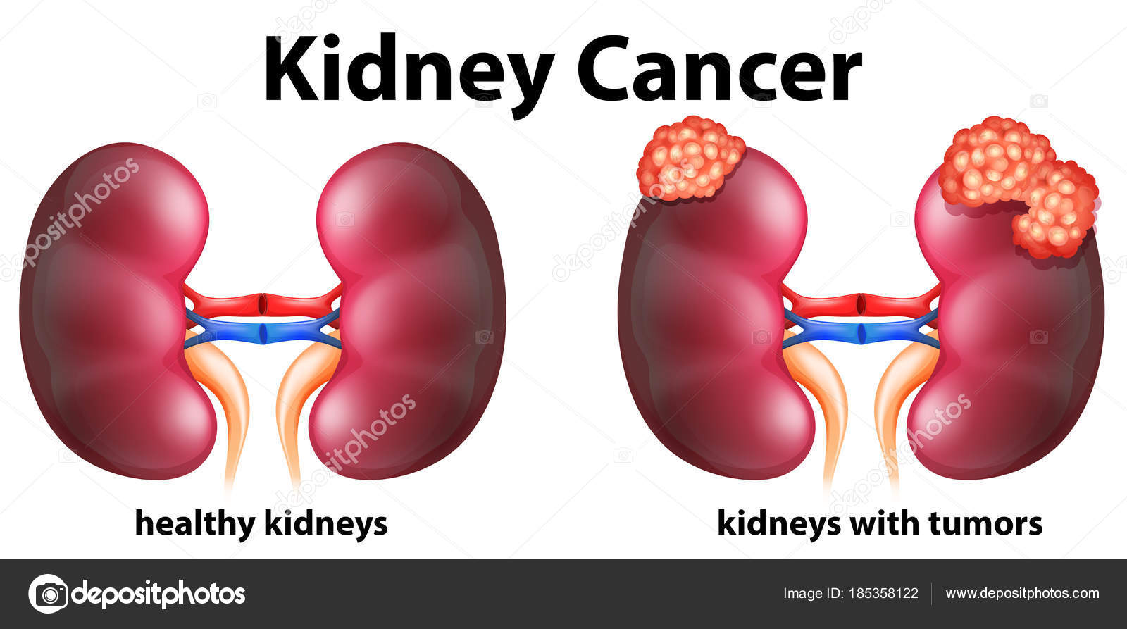 Diagram showing kidney cancer in human stock vector diagram showing kidney cancer in human illustration vector by blueringmedia ccuart Gallery